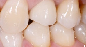 dental-implants-vancouver