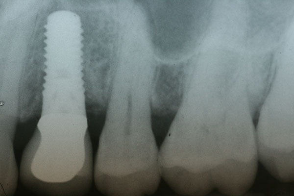 patient04-xray-implant-crown